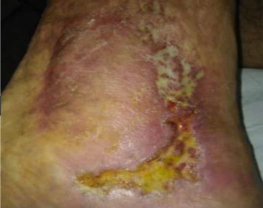 L-Mesitran jako alternativa k léčbě antibiotiky