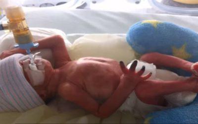 Suchá gangréna v pravé ruce u kojence